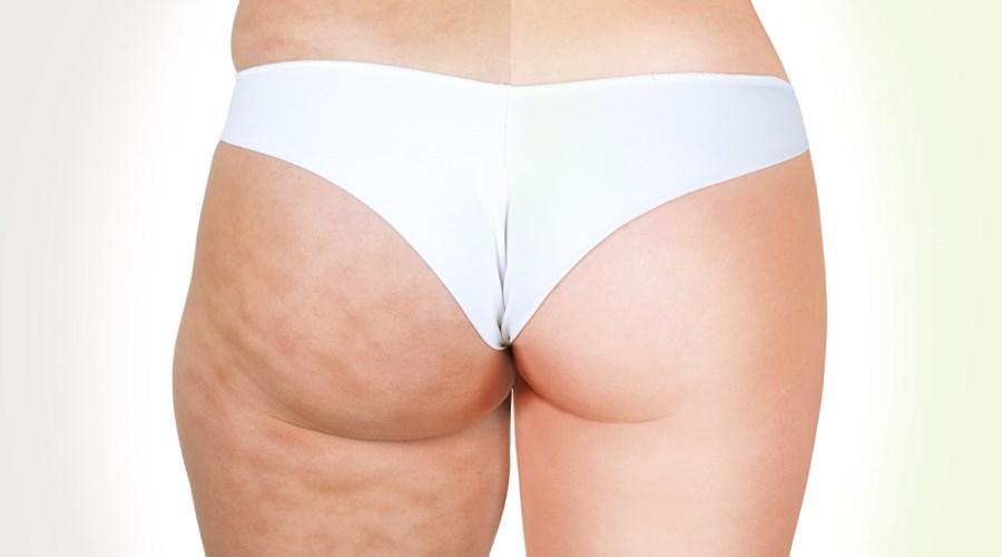 Tipps Gegen Cellulites