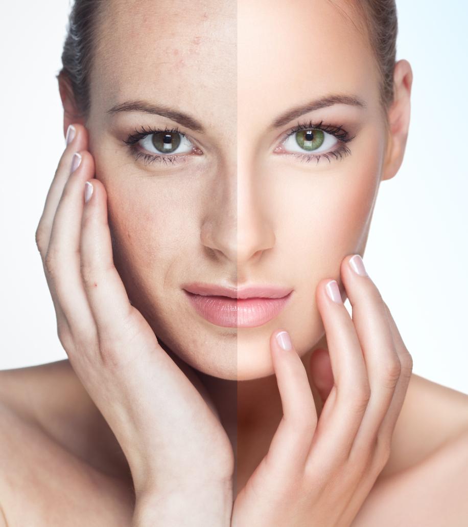 Tipps Gegen Hautunreinheiten